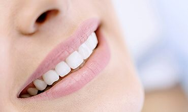 Closeup of beautiful smile with porcelain veneers