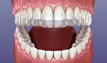 A digital image of a full mouth with a clear Invisalign aligner going on over the top row of teeth