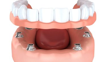 implant-retained dentures in Chevy Chase