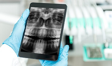 Dentist looking at dental x-ray on tablet