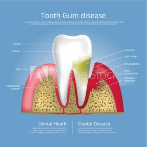 Illustration of a tooth with gum disease