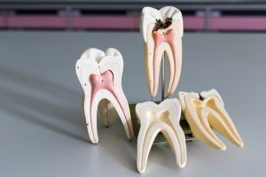 Root canal educational model
