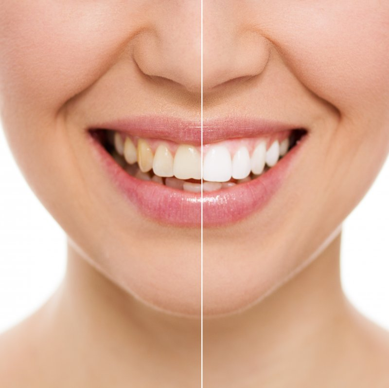 woman teeth whitening before and after