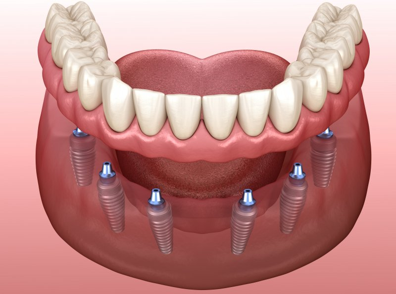 a digital image of a bottom arch with a customized denture being placed over six dental implants that are inserted into the jawbone